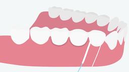 Super floss for dental bridges (hygiene for dentures). 2D dental video 4K Animation