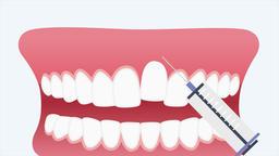 Dental trauma. Dental 2d animation Animation
