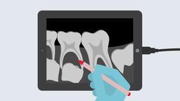 Digital X-ray. 2D dental video 4K Animation