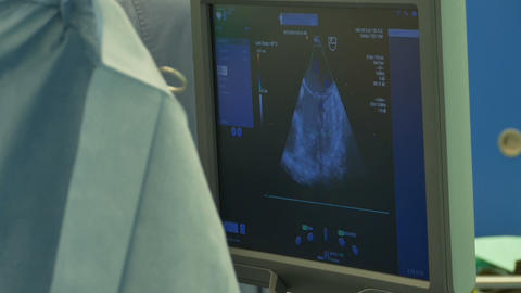 Ultrasound Monitor in Operating Room Footage
