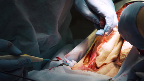 Surgical operation of a dog in a veterinary clinic Live Action