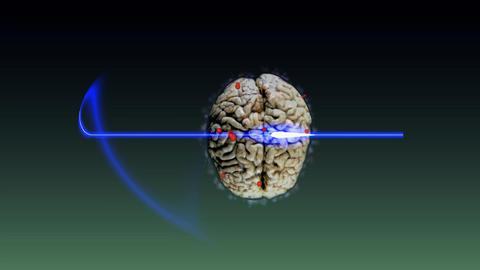 135 Medicine and HEALTH SUBJECT Animated brain grow tumor Animation