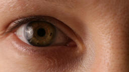 Green eye of a middle-aged woman. Close-up. Macro. Contact lens.European Footage