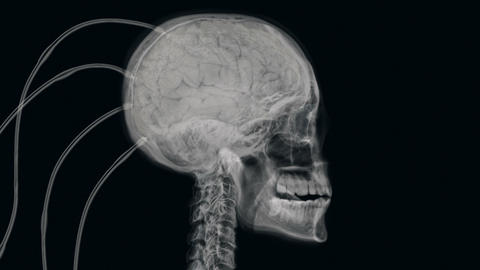 X-ray of experimental procedure on human brain Animation