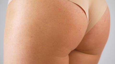 Woman squeezes buttocks. Cellulite of the first degree appears on the skin Footage