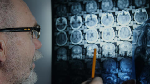 Senior doctor reviewing brain MRI Live Action