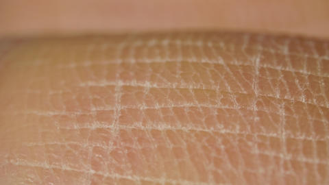 White detailed caucasian human skin on hand fingers closeup in macro Footage
