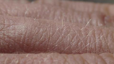 White detailed caucasian human skin on hand fingers closeup in macro ライブ動画