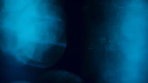 Transition of blue light flares over blue blackground Live Action