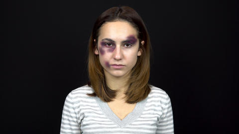 Young woman cries covering her face with hands. A woman with bruises on her face Live Action