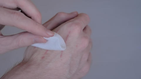 Man trying to treat cat scratches with cotton pad and hydrogen peroxide: closeup Live Action