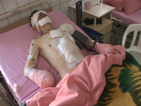 A man lies in a bed in the hospital who has been severely injured in the Iraq War Footage