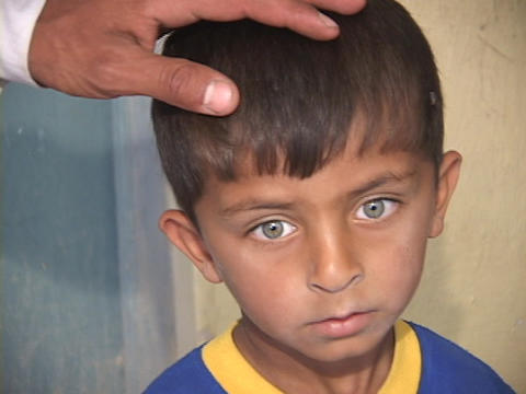 A young Iraqi boy shows the effects of war in his sad face Footage
