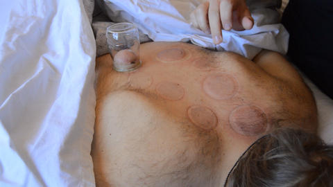Cupping Therapy Is Now Over Live Action