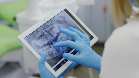 X-ray of the teeth on a portable device Live Action