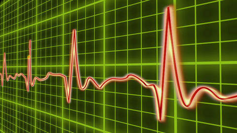 EKG cardio heart beat, normal and zero pulse with audio Footage