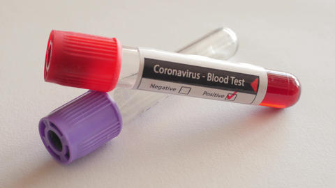 positive result of blood test for coronavirus, covid-19, sars-cov-3, rotating Live Action