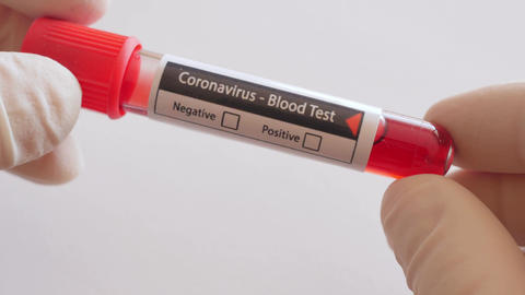 test tube with blood, coronavirus, covid-19, sars-cov-2 Live Action