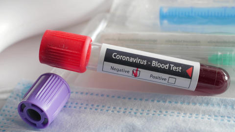 negative result of blood test for coronavirus, covid-19, sars-cov-2, rotating Live Action