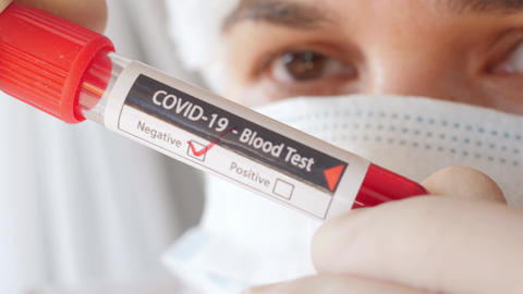 doctor showing tube, negative result of blood test for coronavirus, close Live Action