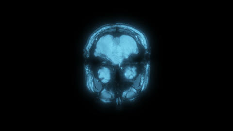 Magnetic Resonance Imaging MRI scan of a Human brain, ultra hd 4k, time lapse. X Animation