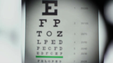 Bad eyesight, optometrist puts different lenses in front of eye Footage