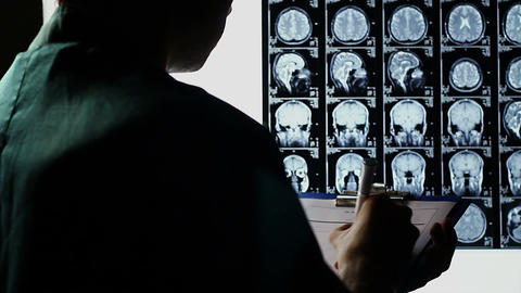 Examining scull brain X-ray scan, taking notes, making diagnosis Footage