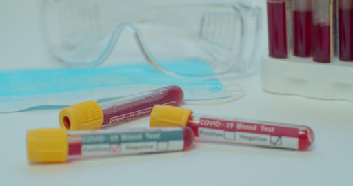 COVID-19 test and laboratory sample of blood testing for diagnosis new Corona Live Action