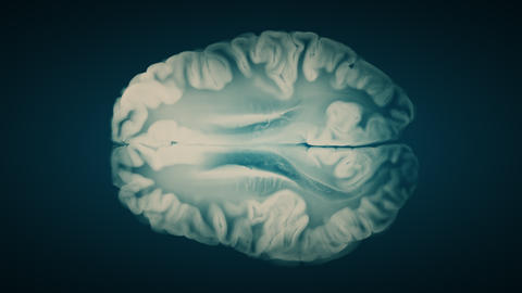 Top View Brain On Blue Background. Neurological Diseases, Tumors And Brain Surgery Animation