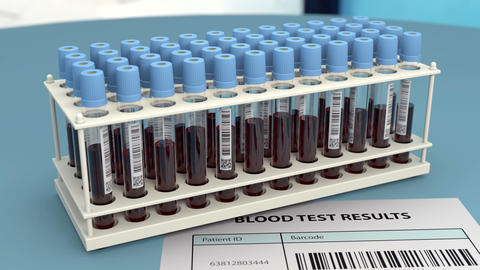 Rack with blood samples in research laboratory Animation