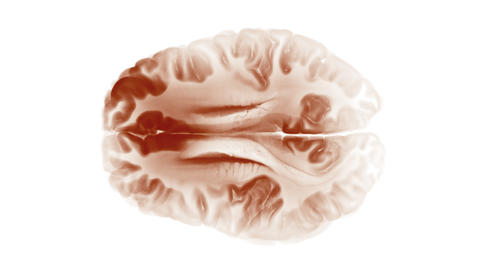 Top View Brain On White Background. Neurological Diseases, Tumors And Brain Surgery Animation