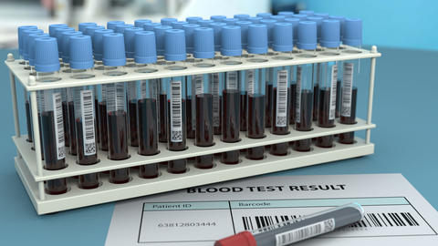 Doctor marks the blood sample test as positive Animation