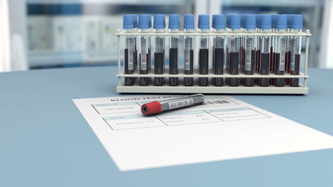 Medical blood test is negative for virus detection Animation