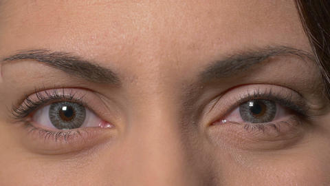 Female eyes with contact lenses opening Footage