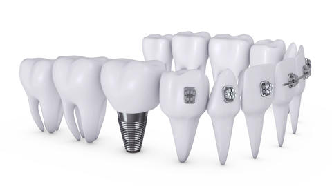 Animation dental brackets Animation
