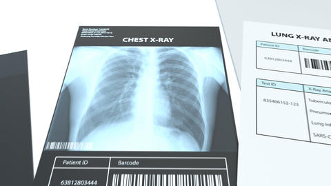 The radiologist exam the x-rays images and makes a medical conclusion Animation