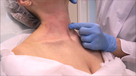 Dermatologist cosmetologist performs botulinum toxin injections for neck rejuvenation Live Action