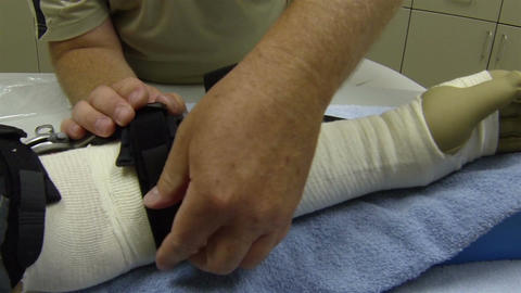 Doctor installing arm brace on patient arm HD 013 Live Action