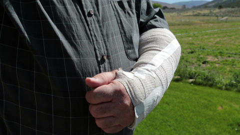 Injured arm in protective cast mature man HD 8212 Footage