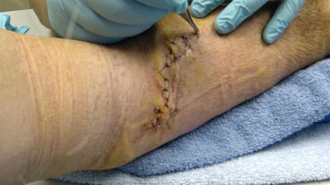 Medical Doctor removes stitches after arm surgery HD 008 Footage