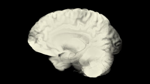 Side View Brain With Alpha Matte. Neurological Diseases, Tumors And Brain Surgery Animation
