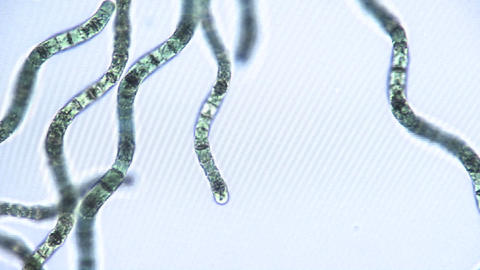 Microscopic view of algae ribbons which move by utilizing... Stock Video Footage