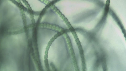 Microscopic view of algae like a necklace of green beads,... Stock Video Footage