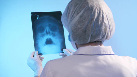 Physician looks at x-ray of the skull Live Action