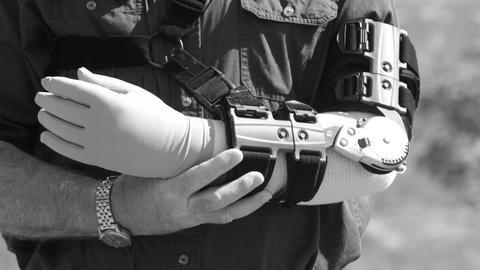 man in adjustable arm brace rubs arm in pain B&W P HD 2499 Footage