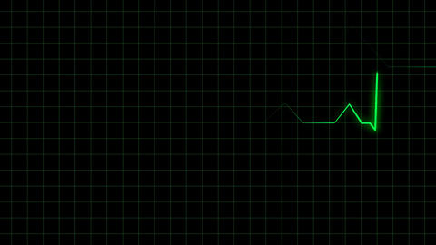 Electrocardiogram 2D animation Stock Video Footage