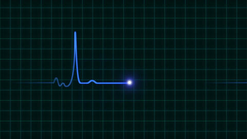 An animated EKG heartbeat monitor in blue wave line (two beat) Animation