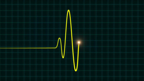 An animated EKG heartbeat monitor in yellow wave line (one beat) Animation