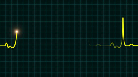 An animated EKG heartbeat monitor in yellow wave line (four beat) Animation