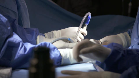 Surgeons during a laparoscopic lung surgery Footage